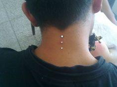 triple dermal, back of the neck