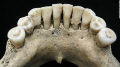 Why a Medieval Woman Had Lapis Lazuli Hidden in Her Teeth: An analysis of dental plaque illuminates the forgotten history of female scribes Medieval Books, Medieval Manuscript, Illuminated Manuscript, Medieval Times, Religious Text, Religious Books, Blue Pigment, Blues Clues, Plate Tectonics
