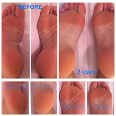 3 uses of epoch sole solution! Epoch Sole Solution, Nu Skin, Lab, Website, Summer, Beauty, Beleza, Summer Time, Cosmetology
