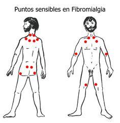 """Puntos-sensibles-fibromialg.-Las personas que padecen de fibromialgia pueden también tener otros síntomas, tales como:  - Dificultad para dormir - Rigidez por la mañana - Dolores de cabeza - Periodos menstruales dolorosos - Sensación de hormigueo o adormecimiento en las manos y los pies - Falta de memoria o dificultad para concentrarse (a estos lapsos de memoria a veces se les llama """"fibroneblina"""")."""