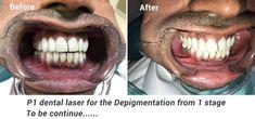 P1 dental laser for the Depigmentation
