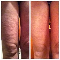 Nerium Firm! Real results! Reducing cellulite and firming skin!  Order yours at  www.wrinkleresults.nerium.com