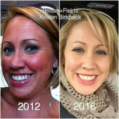 Oh YEAH...Check out  fellow consultant Kristen!  Reverse and the AMP MD Roller is what got her skin back on track!  ♡ Texture: improved! ♡ Tone: restored! ♡ Forehead lines: gone! ♡ Firmer, brighter, lovelier!   If you're seeing sun damage, I've got the stuff to help fix it!