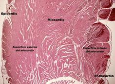 El miocardio es la capa que ocupa casi toda la masa de la pared del corazón y está compuesto por fibras musculares cardíacas que se unen mediante tejido conectivo.  El miocardio comprende tres tipos celulares: 1. Cardiocitos contráctiles, que se contraen para bombear la sangre hacia la circulación. 2. Cardiocitos mioendocrinos, que producen el péptido natriurético atrial. 3. Cardiocitos nodulares, especializados en el control de la contracción rítmica cardíaca.