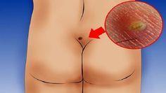 Não ignore esta informação: esta pode ser a razão da dor nas suas costas
