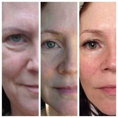 3 Year Pictures.... It just keeps getting better and better! Anne Kerry Ford's Natural Beauty was Reveal with NeriumAD Picture on Left Before Nerium-- 3 months into using Nerium AD--- three years using Nerium AD Night and Day Cream!  #Nerium   http://juliejohn.nerium.com/customers