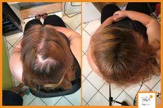 """Egyperces """"trükk"""" a hajritkulás látható jelei ellen Marie Claire, Hair Beauty, Cute Hair"""