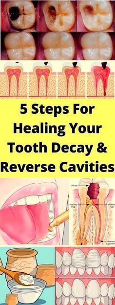 Healthy gums and teeth make it easy for you to eat as well as enjoy the food. Multiple problems can have a negative impact on your oral health. However, taking good care of your gums and teeth will keep them strong as you age. The best way to keep good oral health is to eat…Read More+ #healthyteeth #gumhealth #gumcare #oralcare