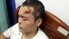 That really is a nose job! Chinese man has new nose grown on his FOREHEAD to replace the original which was damaged in a car crash Human Oddities, Weird News, Crescendo, Bizarre, Wtf Fun Facts, Awesome Facts, Random Facts, Interesting Facts, Weird Pictures