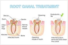 All you need to know about #Root #Canal Treatment or #Edodontics Therapy  http://www.westladentalcare.com/root-canal-treatment/
