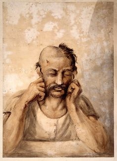 "Soldier suffering from a head wound, part of his scalp shaved, inscribed Waterloo."".  One of series of watercolours by surgeon Charles Bell (1774-1842) of wounded soldiers from the Battle of Waterloo. Bell hurried from London to Brussels in June 1815 to assist in treating wounded. He filled a sketchbook with interesting cases which were subsequently worked up as watercolour paintings for teachings of wounded.   wellcomeimages.org   (PD-Art)  commons.wikimedia.org"