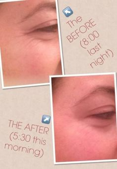 Allison Sotello Before and after Acute Care