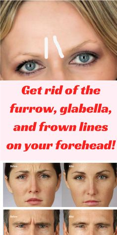The first wrinkles that appear on our face are the glabella lines on the forehead. They make us look older and angry. One way to remove them is Botox. It is a common treatment that many people especially women use. It will make you look younger and your s