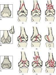 distal femur fracture classification