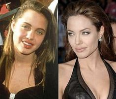 Angelina Jolie Nose Job, Lips and Botox Injections Plastic Surgery Before and After Angelina Jolie Nose Job, Angelina Jolie Plastic Surgery, Celebrity Makeup, Celebrity Look, Celebrity Pictures, Celebrity Dresses, Plastic Surgery Photos, Celebrity Plastic Surgery, Celebrities Before And After