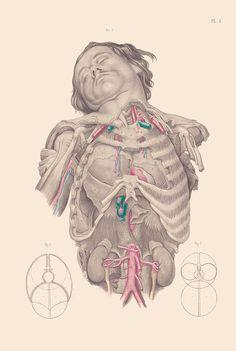 Disturbing Vintage Medical Illustrations That Will Shock You