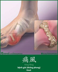 痛風 - tòng fēng - thống phong; bệnh gút - gout