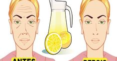 This homemade face lemon toner can make your wrinkles disappear · Fitness and Health Homemade Face Toner, Toner For Face, Homemade Face Masks, Lemon Juice Face, Lemon Juice Benefits, Lemon Toner, Home Remedies For Hair, Les Rides, Health Tips