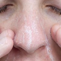 How to Remove Blackheads With Rubbing Alcohol & Baking Soda | eHow