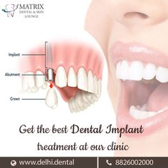 We provide the best facility for dental implants `in south Delhi . To know more aboutother orla health services visit http://www.delhi.dental/