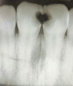 <3 Awww what cute cavities !