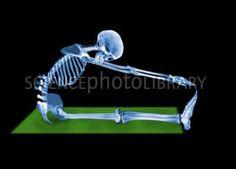 X-ray Stretching