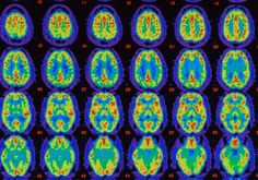 Treatment for Alzheimer's disease may need to start at the first sign of amyloid accumulation, and long before the first signs of memory loss occur, to change the progression of the disease, a new longitudinal study of healthy men and women finds. Alzheimer's Treatment, Psychology Studies, Sport Psychology, Counseling Psychology, What Happened To Us, How To Focus Better, Brain Science, Science News, Science Articles