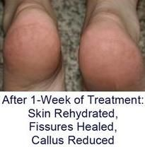 Dry Cracked Heels and Heel Fissures Treatment, Heel Sock and Creams, Podiatrist Seattle, Washington