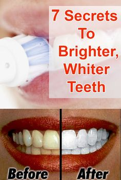 Health Matters: 7 Secrets to Brighter, Whiter Teeth