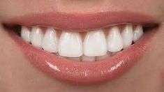GLENOAKS DENTAL CLINIC offers best treatment of denture implants, dental implants Glendale ca and Glendale dental implants. Contact us at for best solution of denture implants, Glendale family dentistry, teeth whitening Glendale. Dental Health, Dental Care, Oral Health, Beautiful Teeth, Dental Veneers, Porcelain Veneers, Emergency Dentist, Smile Makeover, Dental Bridge