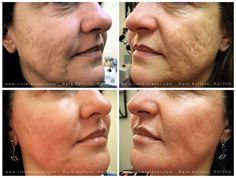Acne Scar Correction: Before, 3 Weeks After Deep wrinkles and moderate to severe acne scarring are dramatically improved in a single treatment. The after photo shown here was taken three weeks post Mixto fractional CO2 laser resurfacing. This type o