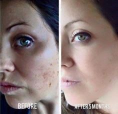 Sun spots? Brown spots? Let me get you started on the best skin of your life! jmeigh.myrandf.com