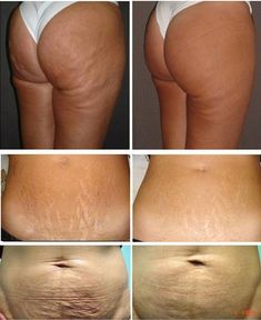 Carboxy therapy for cellulite and stretch marks. Informations About Carboxy therapy for cellulite and stretch marks. Galvanic Body Spa, Stretch Marks On Thighs, Best Natural Skin Care, Skin Tightening, Plastic Surgery, Skin Care Tips, Beauty Skin, Body Care, Beauty Tips