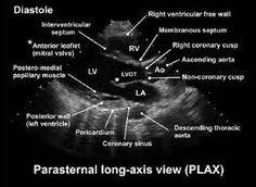 Image result for parasternal long axis view
