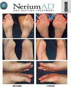 Got cracked, calloused feet? Nerium Night Cream can take care of that! This #patented #skincare product can work anywhere on your body with rapid #results! These before and after pics only span 1 week! Feel better about wearing your strappy heels and sandals with #beautiful feet! 30-day money back #guarantee- so you can feel confident about your purchase. #FollowLauraLives #footcream #antiaging
