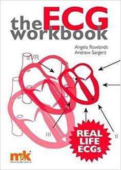 Download The ECG Workbook PDF 2008 Visit (MedBooksPDF) NOW #telegram https://t.me/freemedicalbooks