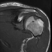 Hill-Sachs lesion due to recurrent anterior shoulder dislocation. Shoulder Dislocation, How To Become, Radiology
