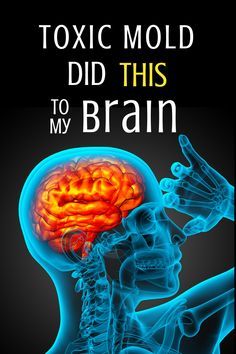 """Mold may be an allergen for some, but its notoriety comes from the fact that it is a powerful TOXIN. Here is a firsthand account of what """"mold brain"""" looks and feels like."""