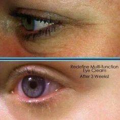 Wow!  R+F eye cream does it again!  Get yours today!  www.emikycrump.myrandf.com