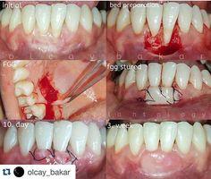 @olcay_bakar  #dentistrystudent #dentistryworld #dentistrylife #dentistry #dentist #dentista #retracao #retracaogengival #odontolovers foto - @dentalcases by draflabusta Our General Dentistry Page: http://www.lagunavistadental.com/services/general-dentistry/ Google My Business: https://plus.google.com/LagunaVistaDentalElkGrove/about Our Yelp Page: http://www.yelp.com/biz/fenton-krystle-dds-laguna-vista-dental-elk-grove-3 Our Facebook Page: https://www.facebook.com/LagunaVistaDental/ Laguna…