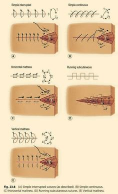 Education Discover Your guide to the different types of surgical sutures. Study help for medical students! Surgical Suture Surgical Tech Medical Surgical Nursing Nursing Notes Nursing Tips Medical Students Nursing Students Medical School Nursing Schools Surgical Suture, Surgical Nursing, Surgical Tech, Nursing Tips, Nursing Notes, Ob Nursing, Funny Nursing, Medical Students, Nursing Students