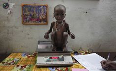 Severely malnourished two-year-old girl Rajni is weighed by health workers at the Nutritional Rehabilitation Centre of Shivpuri district in the central Indian state of Madhya Pradesh February 1, 2012. India has failed to reduce its high prevalence of child malnutrition despite its economy doubling between 1990 and 2005 to become Asia's third largest. A government-supported survey last month said 42 percent of children under five are underweight - almost double that of sub-Saharan Africa - compar