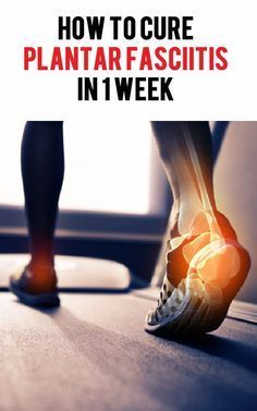 Plantar Fasciitis plagues many people, especially runners, but it doesn't have to. There are some simple things you can do to prevent and cure plantar fasciitis forever. #running #plantarfasciitis