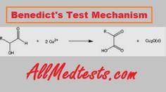 Benedict's test and Reducing Sugar Analysis