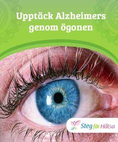 Upptäck Alzheimers genom ögonen  Nyligen utgivna #studier i USA och Kina har visat att det är #möjligt att upptäcka Alzheimers genom ögonen. Anledningen till #detta är att dina ögon är relaterade till din #hjärna och några av dess viktiga funktioner.