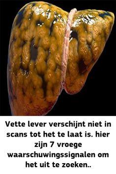 Wanneer vet ophoopt tot toxische niveaus in de lever leidt het tot niet-alcoholische vetziekte (NAFLD). Na verloop van tijd veroorzaken de buitensporige vetniveaus in het lichaam ontsteking oxida…