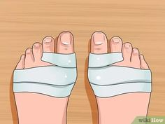Imagen titulada Get Rid of Bunions Step 6
