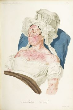 Early Visualizations Of Disease Are As Fascinating As They Are Disturbing