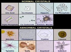 Urine Crystals Forms