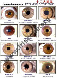 Iris diagram of color wiring diagram database free iridology eye chart downloads large iridology chart total rh pinterest com camera iris diagram camera iris diagram ccuart Choice Image